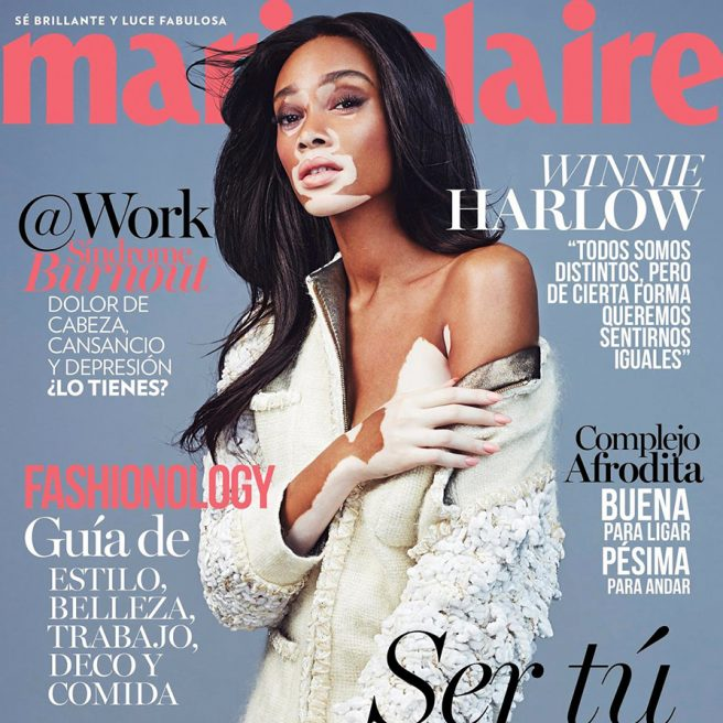 Winnie Harlow – Marie Claire Mexico